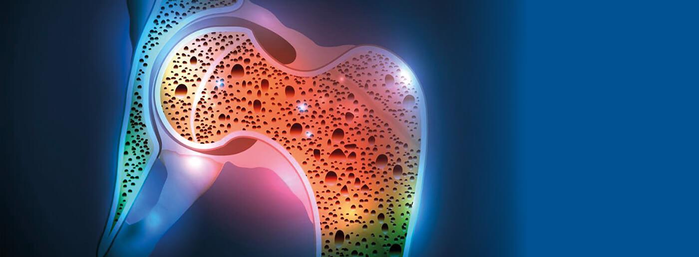 Densitometria ossea (Moc Dexa)
