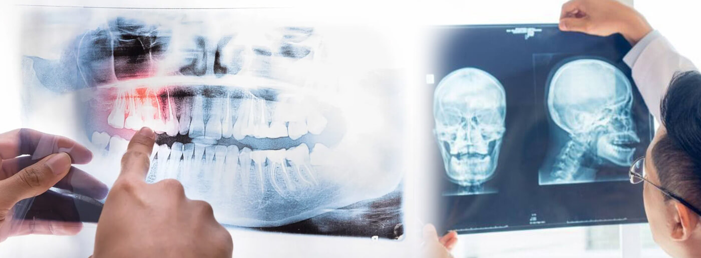 ortopantomografia teleradiografia